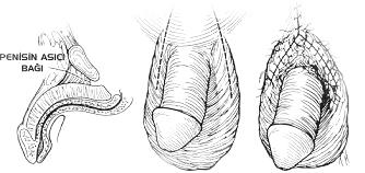 Penis uzatma ameliyatları
